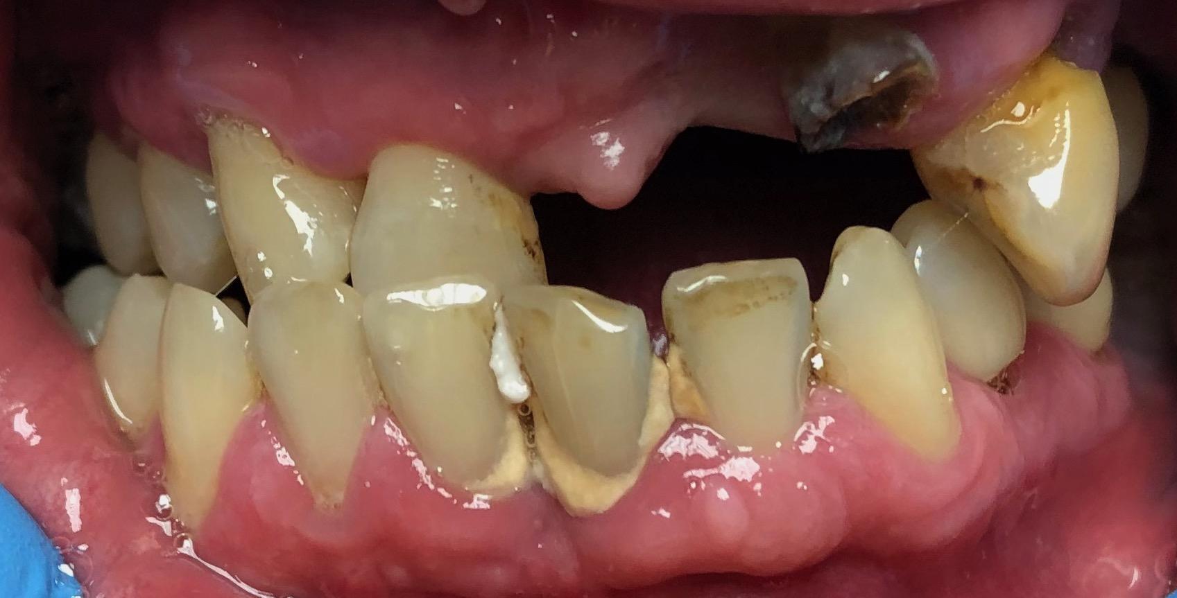 dohányzás és fogak
